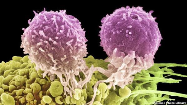 تقنية جديدة لتشخيص أفضل للسرطان