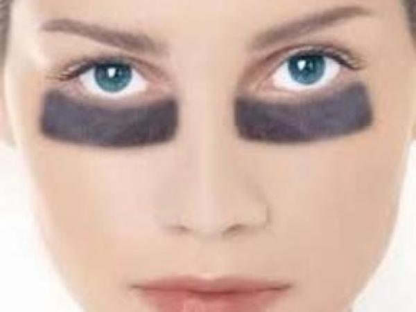 علاج انتفاخات العين بوصفات طبيعية