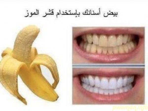 أسرع طريقة لتبيض الأسنان بأستخدام قشر الموز