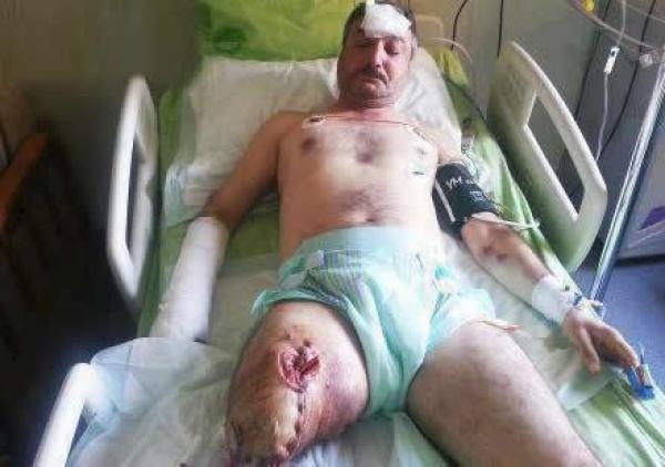 نقل مؤسس «الجيش الحر» إلى مستشفى بتركيا بعد فقد ساقه في انفجار